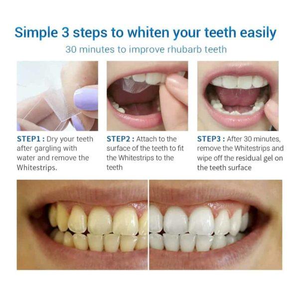 Belilni trakovi za zobe