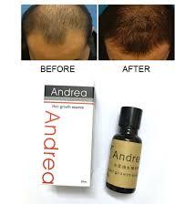 Esenca za ponovno rast las